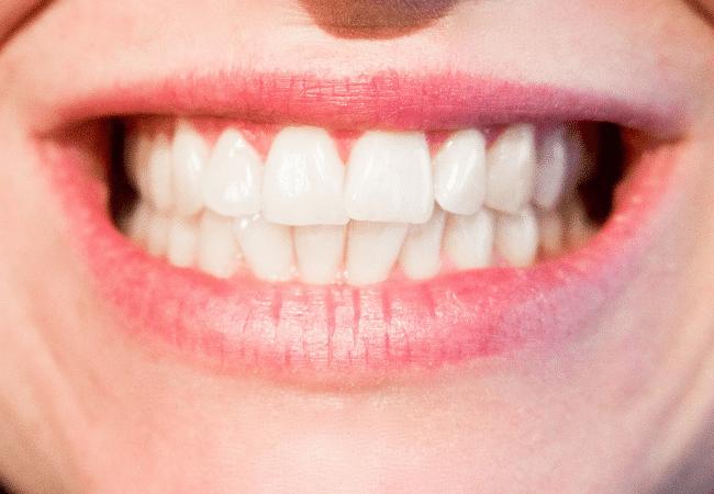 Dentální hygiena a její význam